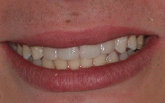Closeup of front teeth with discoloration removed