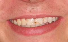 Closeup of front teeth with discoloration