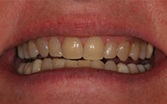 Yellowing and worn teeth closeup