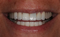 Closeup of smile with healthy white bottom teeth