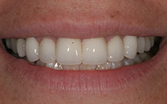 White and healthy smile after