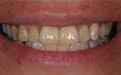 Unhealthy yellowed teeth