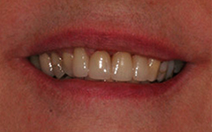 Closeup of flawlessly repaired smile