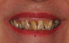 Closeup of severely decayed and damaged teeth