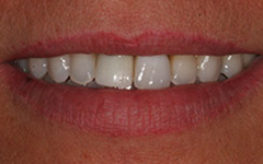 Closeup of smile with yellowing around teeth