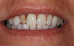 Front tooth with severe decay or damage