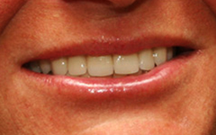 Closeup of straight healthy smile