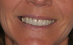 Closeup of healthy beautiful teeth after repair