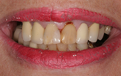 Closeup yellowed front tooth and damaged gums