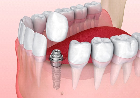 Model of single tooth dental implant.