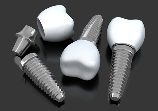Animated implant supported dental crowns