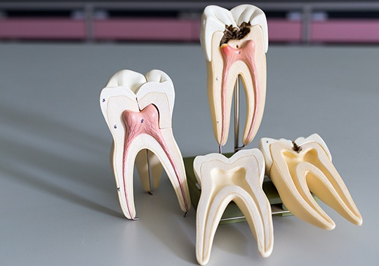 Model of healthy and unhealthy tooth